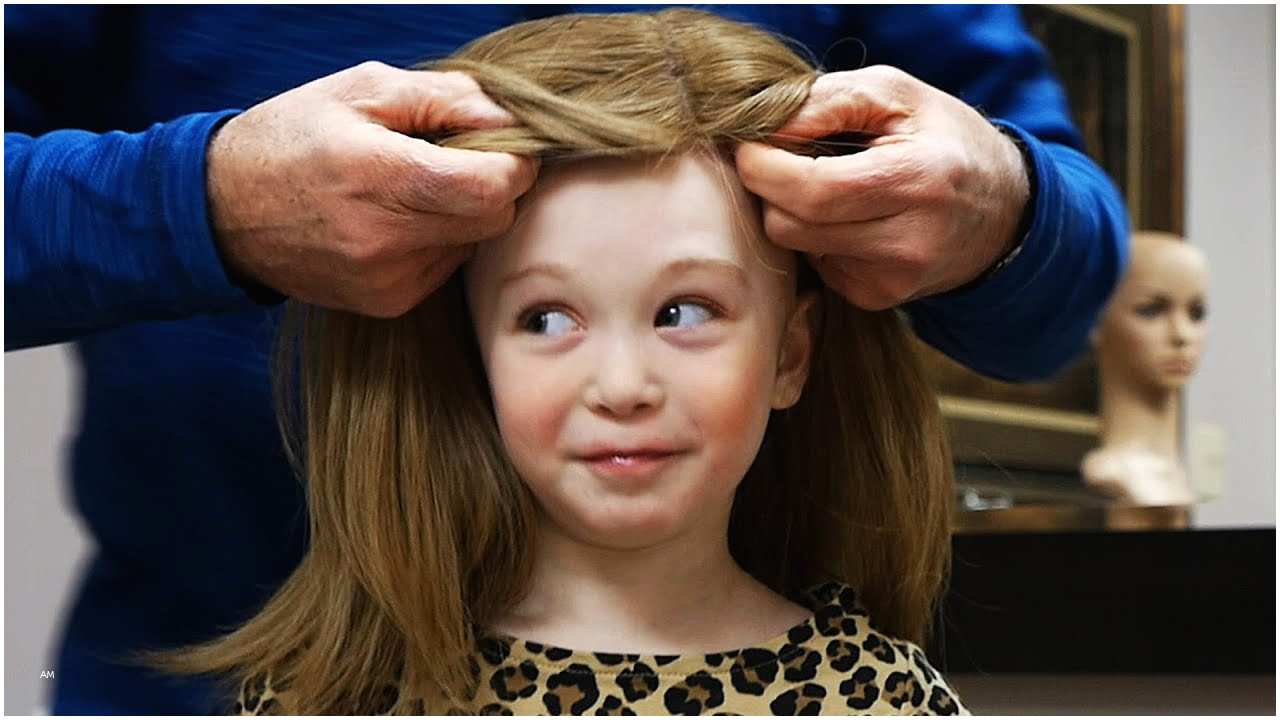 Children with hair loss, parents must know this to help kids facing this issue